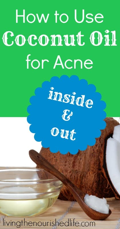 How to Use Coconut Oil for Acne (Inside and Out) - The Nourished Life
