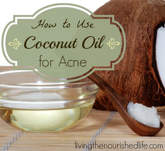 How to Use Coconut Oil for Acne: coconut, jar of coconut oil, and spoon full of coconut oil