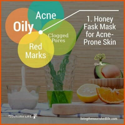 1. Honey Face Mask for Acne-Prone Skin