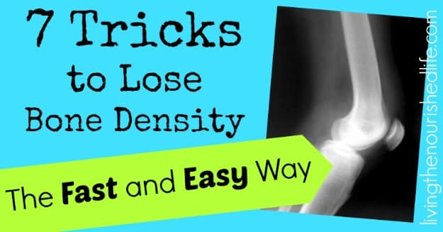 7 Tricks to Lose Bone Density the Fast and Easy Way: xray of bones - The Nourished Life