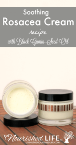 Soothing Rosacea Cream Recipe with Black Cumin Seed Oil