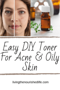 Easy DIY Toner for Acne and Oily Skin